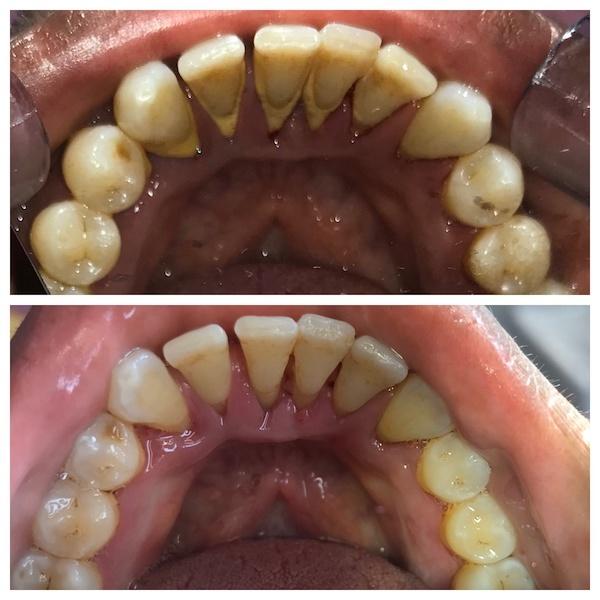 Melody dental taupo