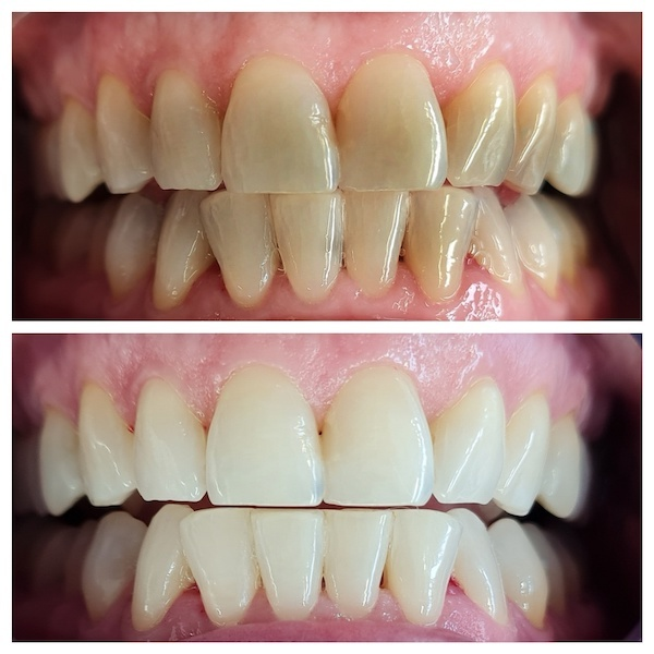 at home teeth whitening