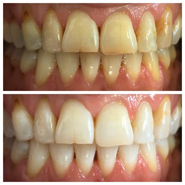 dental hygience taupo