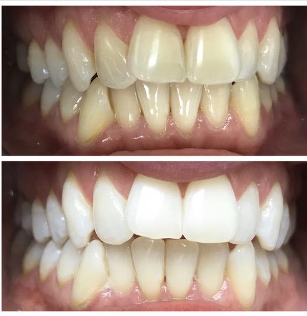 dental hygienist taupo