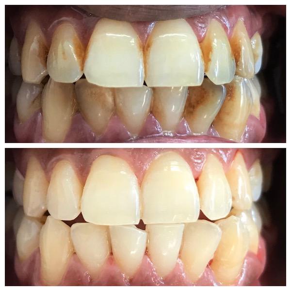 dental services taupo