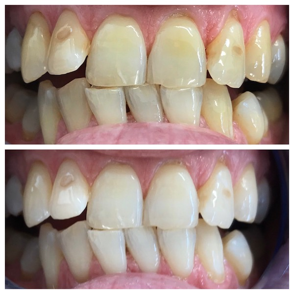 dental supplies teeth whitening