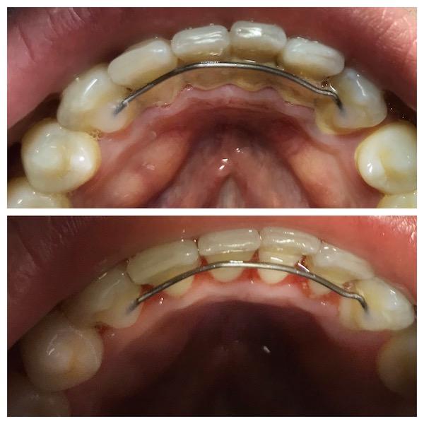 dental taupo