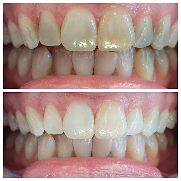 dentist taupo