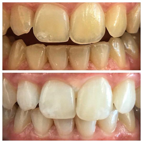 professional teeth services taupo