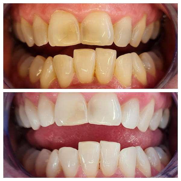 teeth cleaning taupo