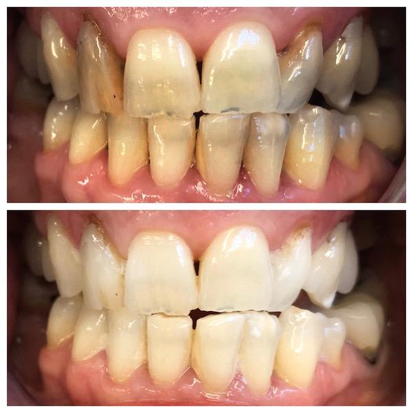 teeth whitening taupo